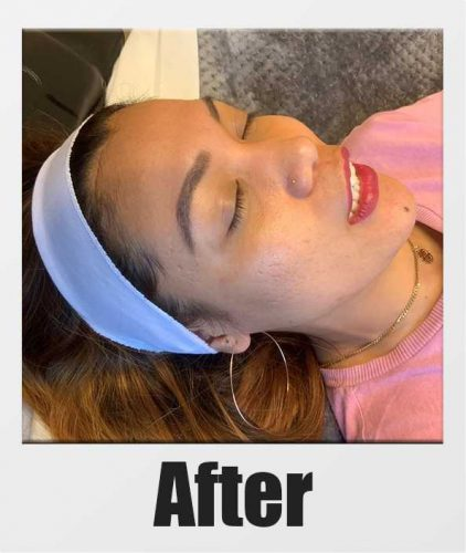 An After photo of Microneedling with PRP in Seattle, Bellevue, and Kirkland