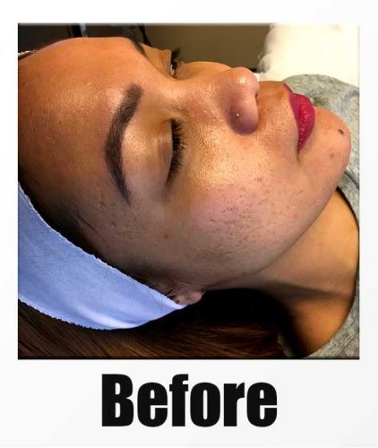 Before picture of Microneedling with PRP in Seattle, Bellevue, and Kirkland