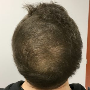 An After image of PRP Hair Restoration in Seattle, Bellevue, and Tacoma