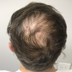 A Before photo of PRP Hair Restoration in Seattle, Bellevue, and Kirkland