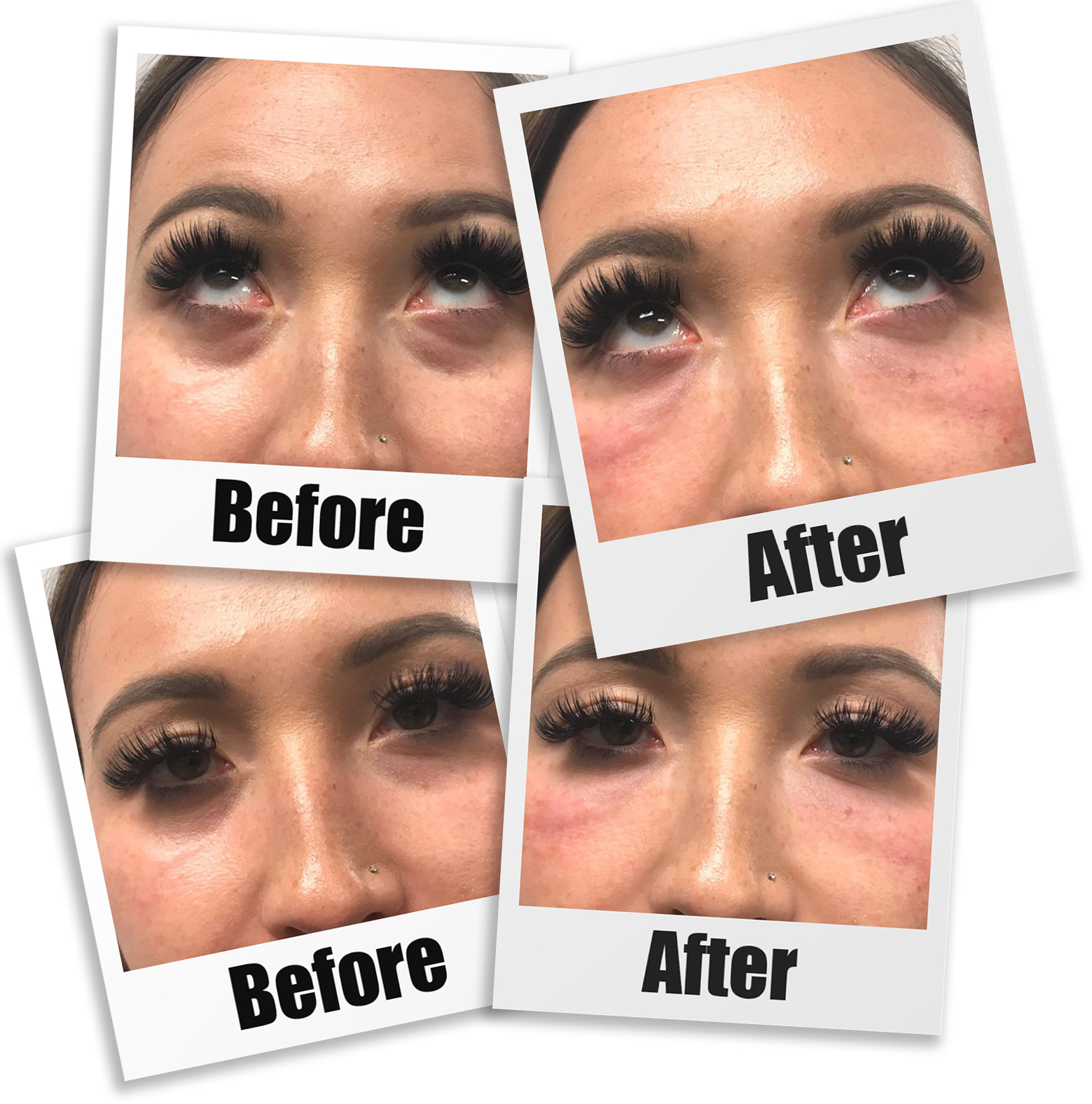 Before and After photos of PRP For Tear Trough Injections in Seattle, Bellevue, and Kirkland