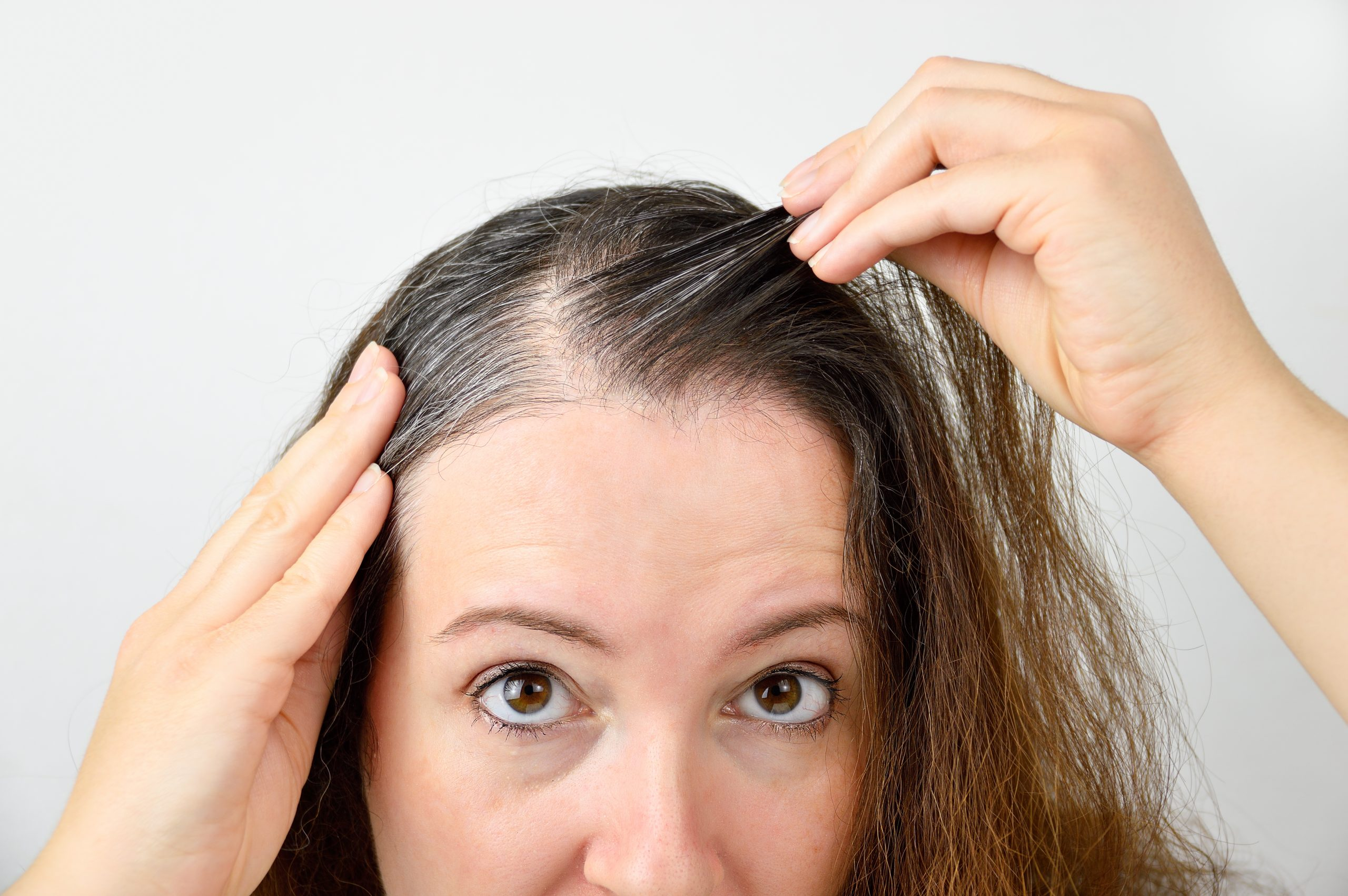 Seattle PRP Hair Restoration Options