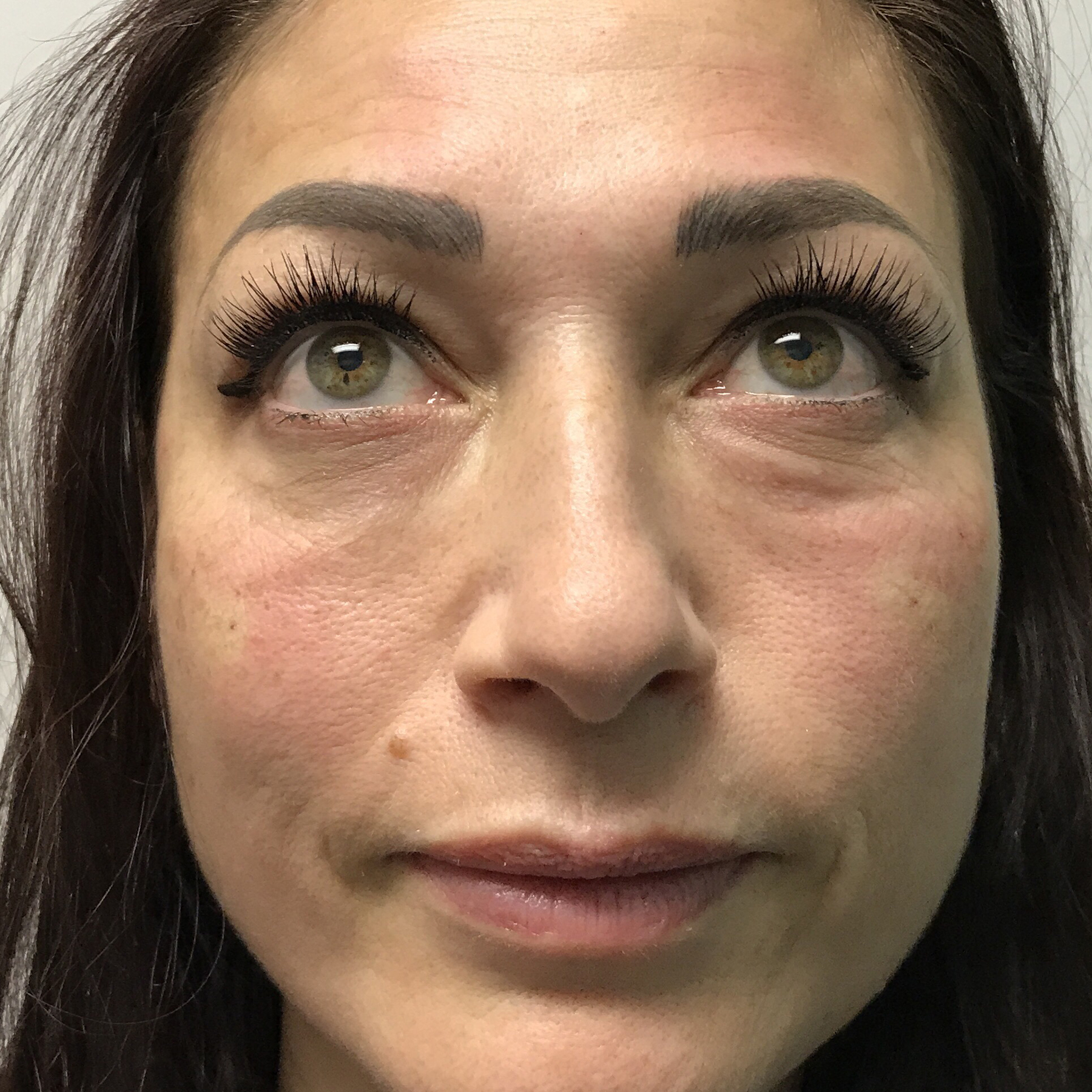 An After photo of PRP For Tear Troughs by Injector Lynda in Seattle, Bellevue, and Kirkland