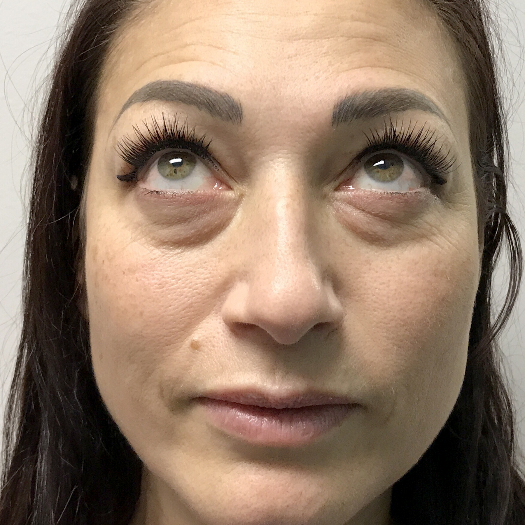 A Before photo of PRP For Tear Troughs by Injector Lynda in Seattle, Bellevue, and Kirkland