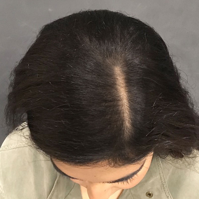 An After photo of PRP With ACell Hair Restoration by Dr. Javad Sajan in Seattle, Bellevue, and Kirkland