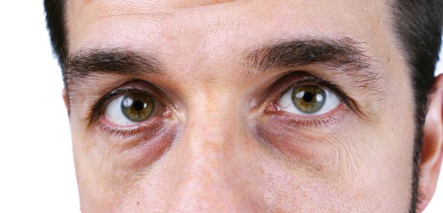 Filler vs. PRP For Tear Troughs