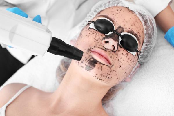 The Zombie Laser Peel: How Our PRP Laser Peel Works