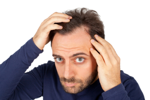 A Photo For A Blog Post About What Is The Best Hair Restoration Method?